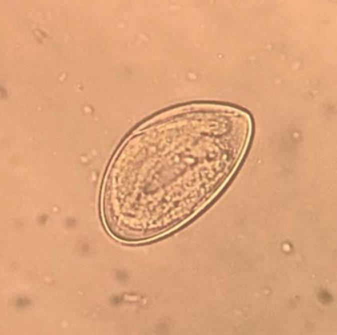 Van pinworms fórum)