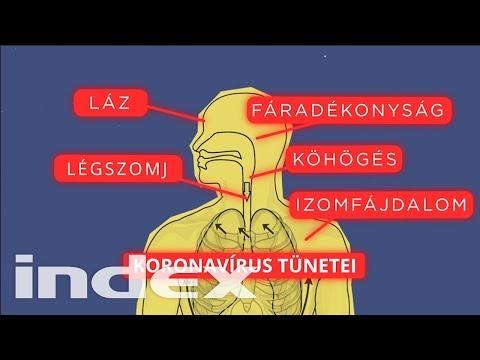 parazitákból származó intex vélemények)