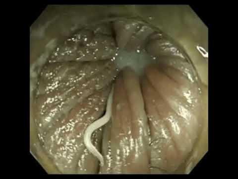 Enterobiasis mennyit - Bélféreg: okok, tünetek, kezelés