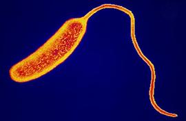 Paraziták gyógyszere 3 éves gyermekek számára. Modern gyógyszerek a paraziták számára