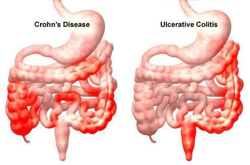 Bélféreg - Így szabaduljunk tőle! | BENU Gyógyszertárak, Vastagbél paraziták tünetei