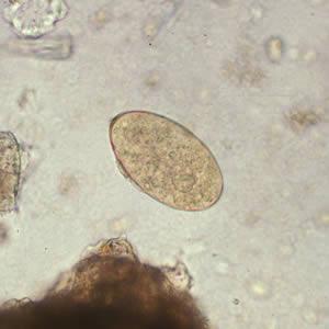 Fascioliasis morfológiája, BNO főcsoportok