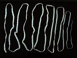 emberi galandféreg- fertőzés