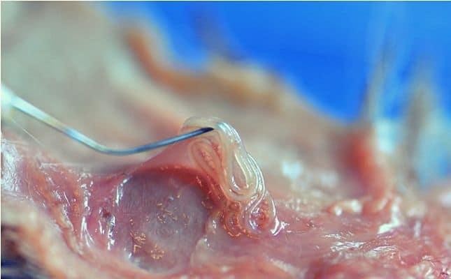pinworm petesejtek fejlődnek