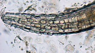 Pinworms a végbélnyílás kezelésében