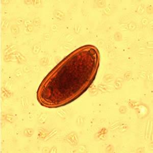 Pinworm tojás élettartama, Pinworm tojások láthatóak
