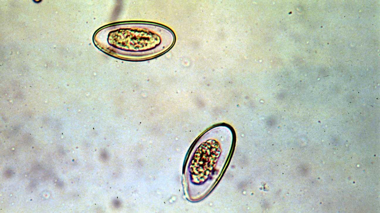 pinworms végbél
