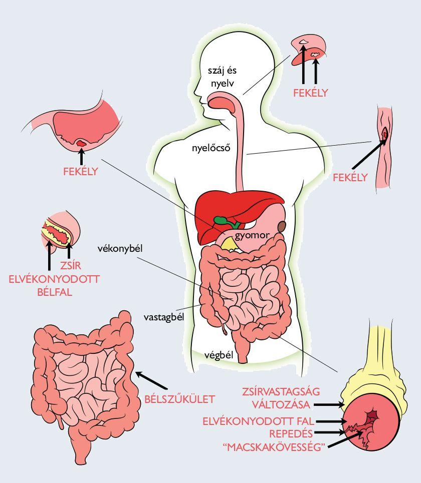 foltos tőkehal és parazitái a giardiasis diagnózisa