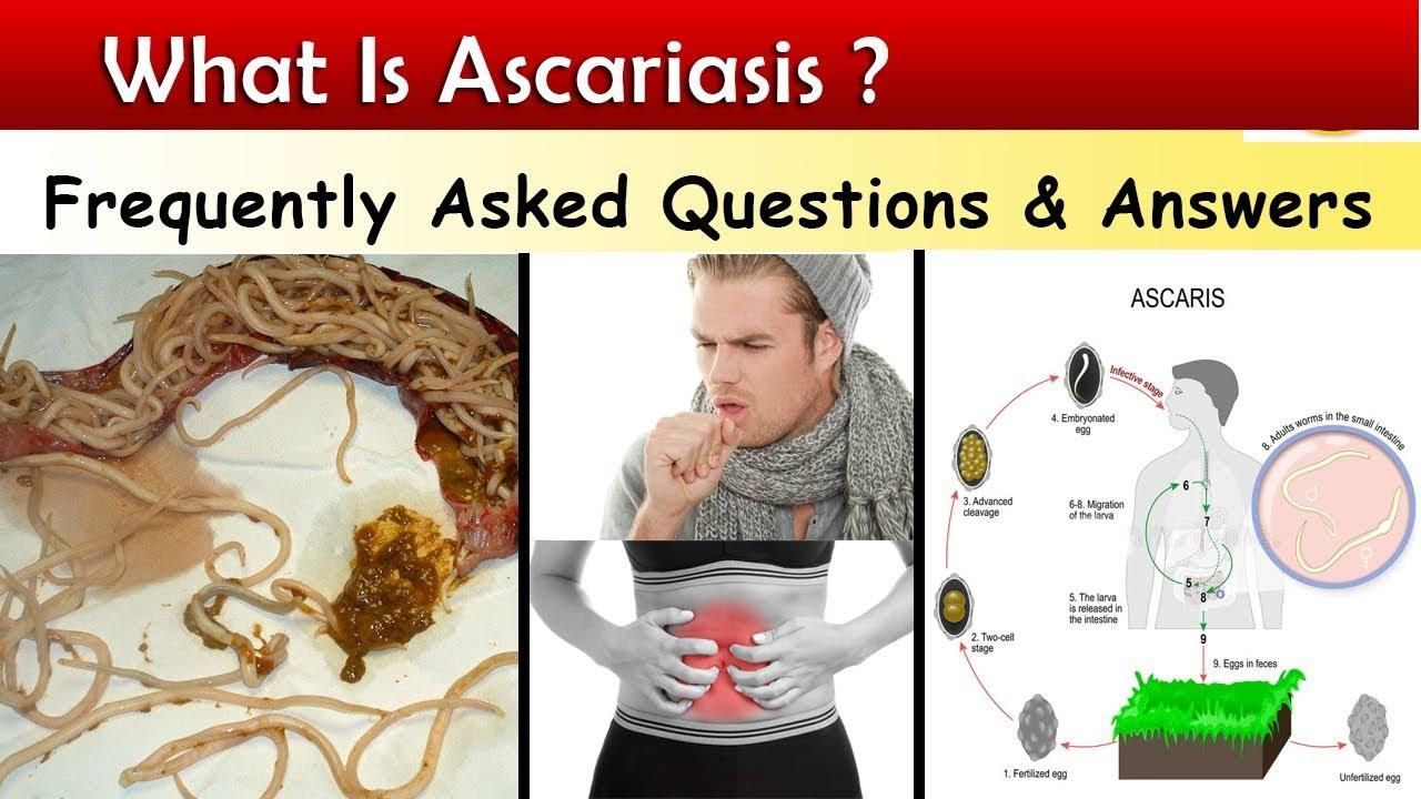 Az Ascaris és a pinworm különbségek táblázata. Ascariasis akut stádiuma