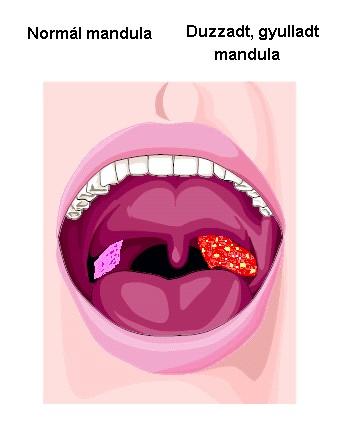 száj és gége szaga