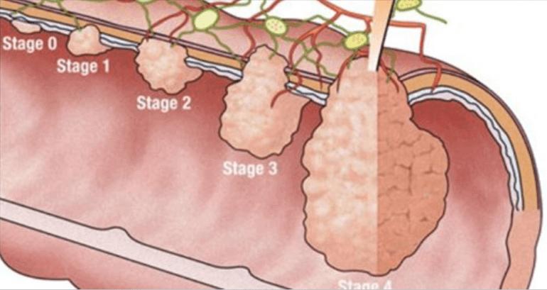 Hogyan lehet megtisztítani a méreganyagok testét - A méregtelenítés technikái