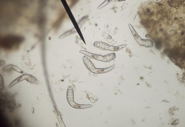 Paraziták | Erzsébet Fürdő Gyógyászati És Szűrőközpont