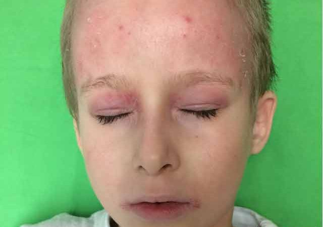 mely parazita okozza az atópiás dermatitist gyógymód a férgek ellen