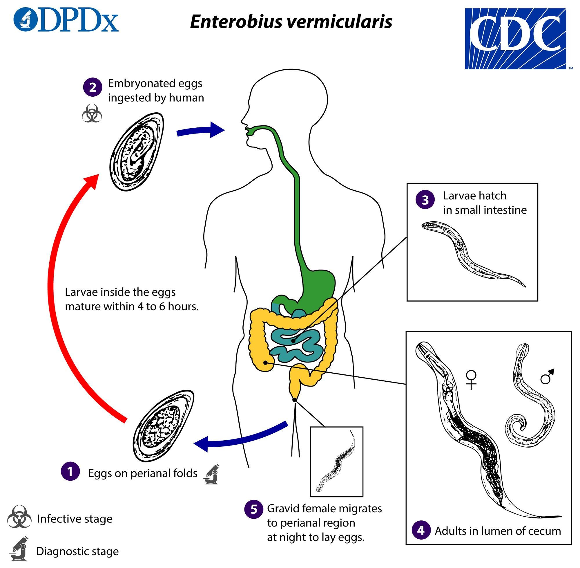 a pinworm enterobiasis jelei)