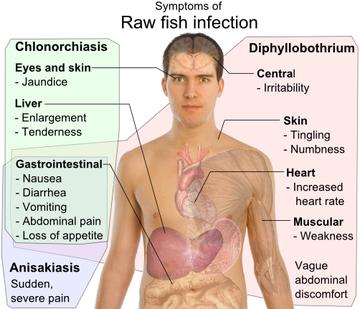 diphyllobothriasis fertőzés útja