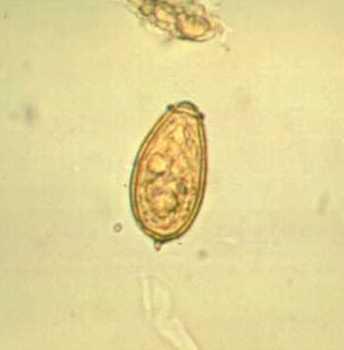 az opisthorchiasis pinworm paraziták a hátsó bőr alatt
