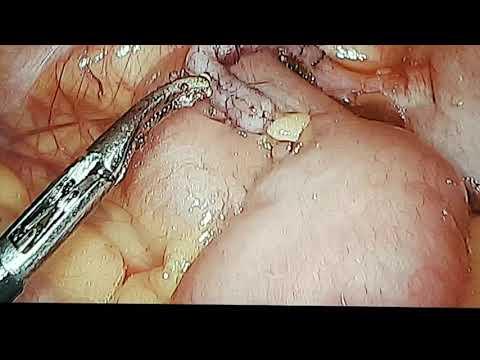 Bél teniosis - A pinworms lokalizációjának helye az emberekben