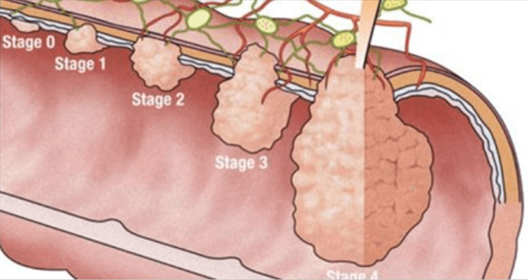 hogy megtisztítsa a testet a méreganyagoktól és a méreganyagoktól