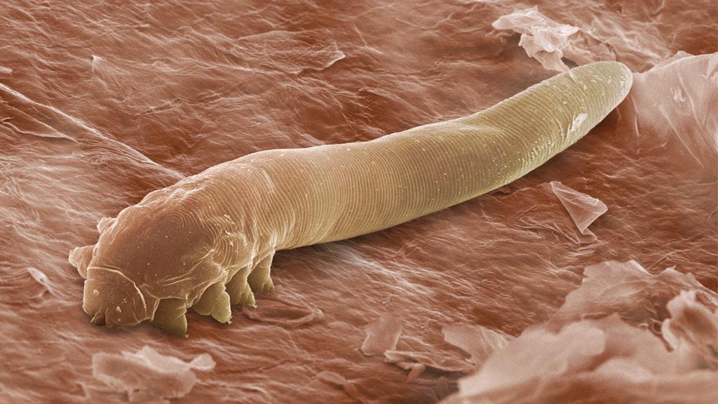 a legmérgezőbb parazita