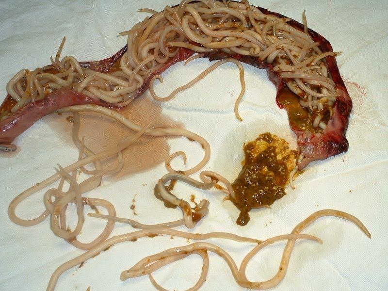 paraziták az artériákban giardia emberekben pinworms