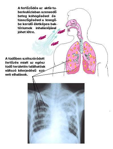 hogyan kell kezelni a kerekférgeket a tüdőben)
