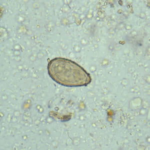 parazita clonorchiasis miért álmodik a galandféreg