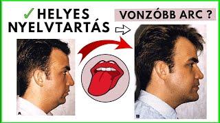takony a nasopharynxben, rossz lehelet)