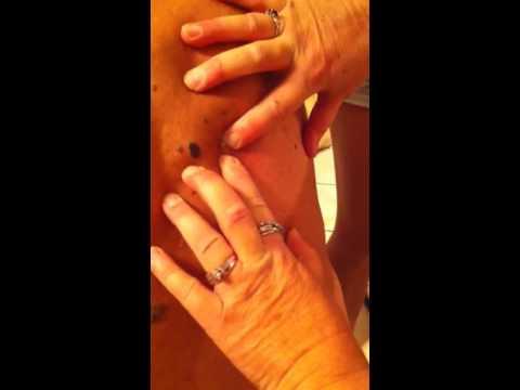 A pinworm férgek kezelése terhes nőkben