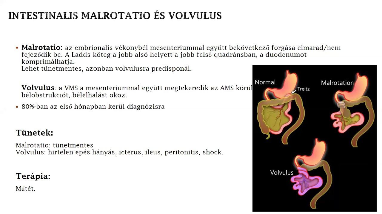ASD gyógyszer a paraziták számára