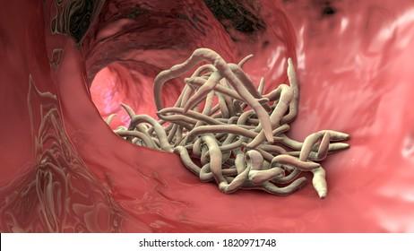 Az Ascaris érintett szerveket