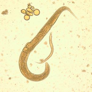 pinworms ascaris ellen)