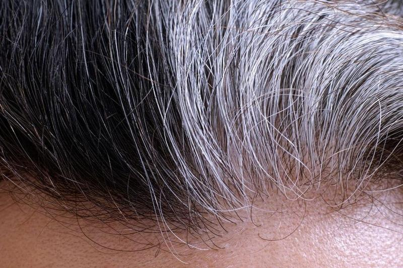 paraziták és ősz haj