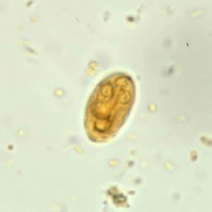 Giardia spp fertozes