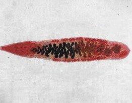 az opisthorchiasis pinworm