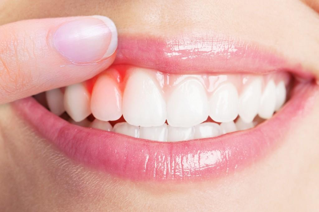 íny szájszagot okoz féregtelenítés ütemezése