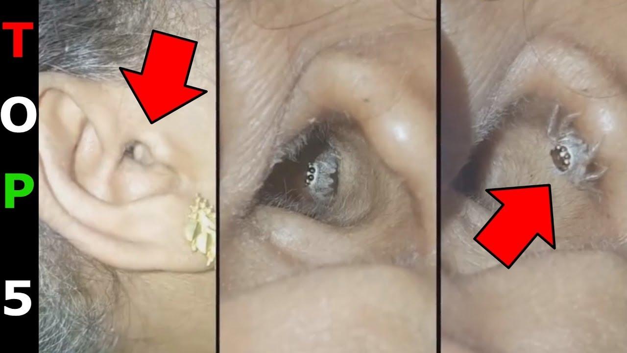 Pinworms emberi fejlődési ciklus - Távolítsa el a pinworms- t a testből