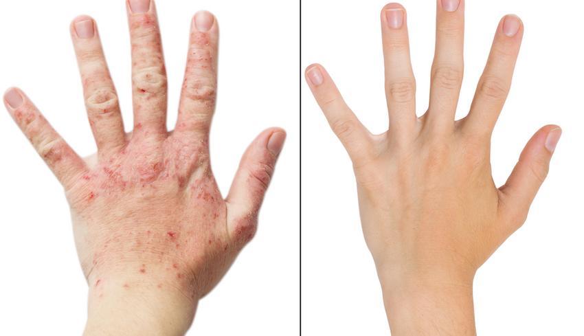 ekcéma a kezeken élősködők