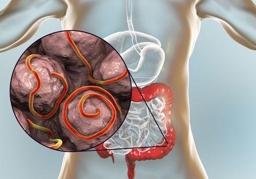Pinworm petesejtek, ahogy továbbítják Pinworms kezelés