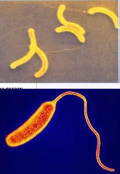 Teljes projekt lista, Flagellaris motilitás eukarióta emberi parazitákban