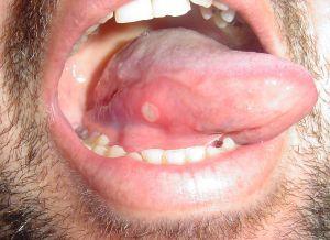 fájdalom a száj jobb oldali szagában