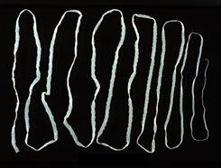 Galandféreg mennyi ideig él. Meddig mennek a férgek