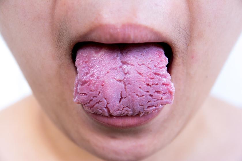 Bélbetegséggel, szájszag A rossz lehelet 11 lehetséges oka