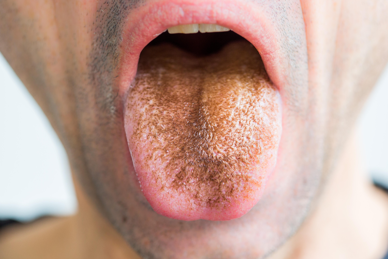 száj vagy torok szaga)