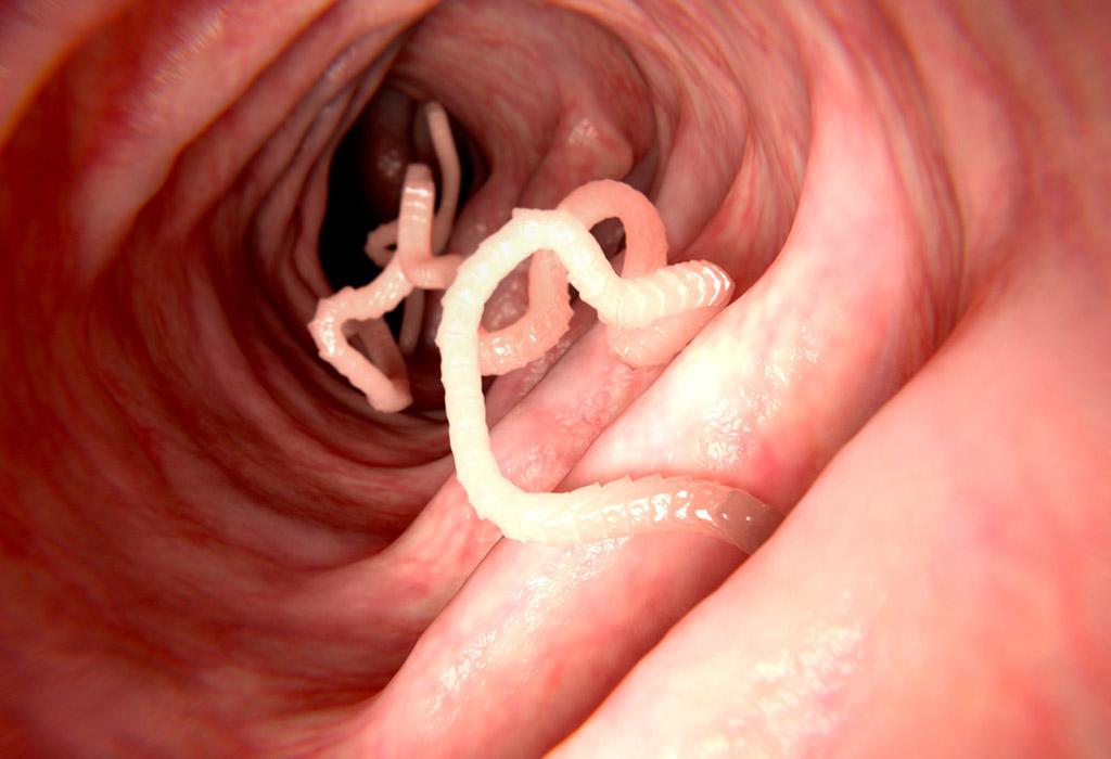 Férgek a tüdőben történő kezelés, Paraziták jelenléte a szervezetben