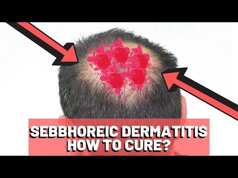 paraziták az ember testén gyógymódok a fej parazitáihoz