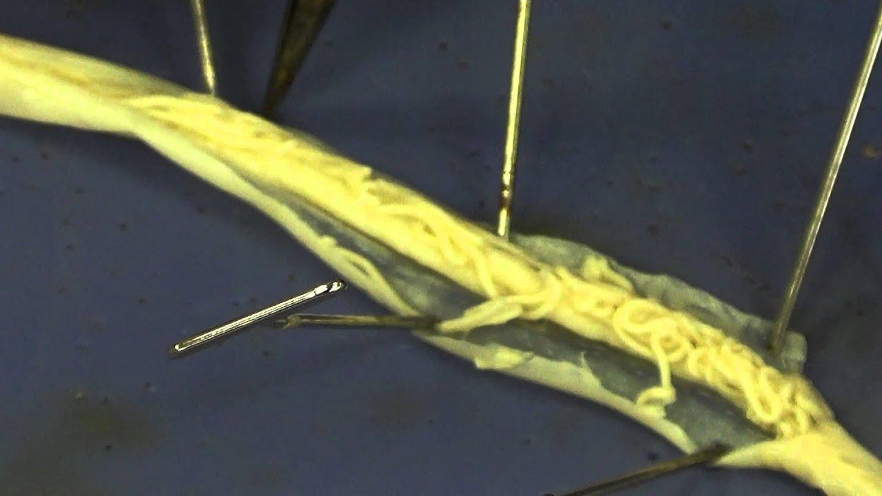 rossz leheletű gasztroenterológus hasznos paraziták azok