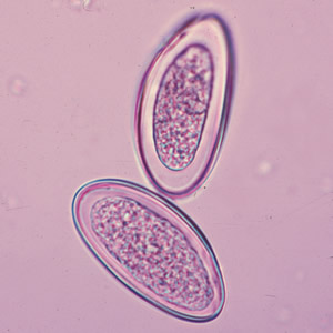 a pinworm tojások enterobiasis