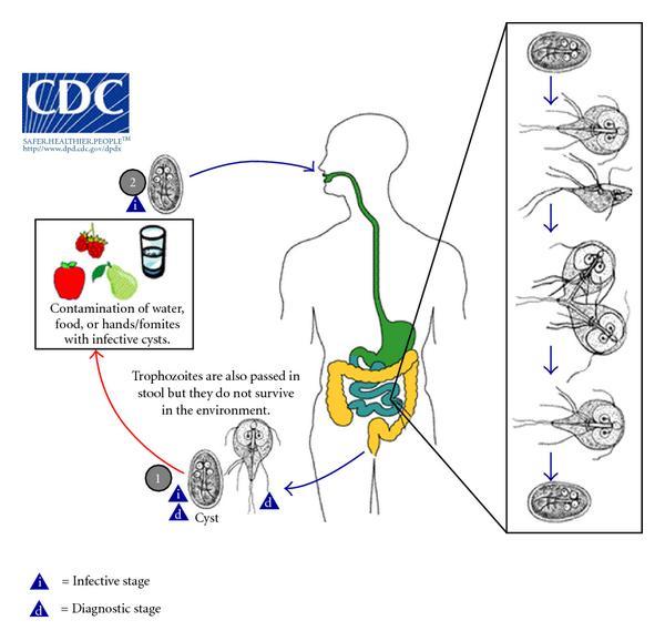 akut giardiasis tünetek paraziták bronzovka