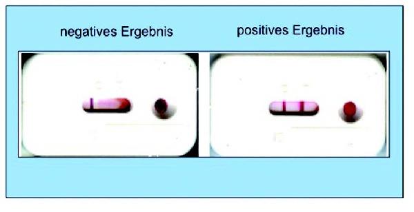 az antitestek szerepe a helminthiasisban készítmények a testtónushoz