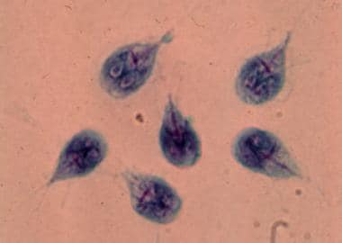 a giardiasis diagnózisa
